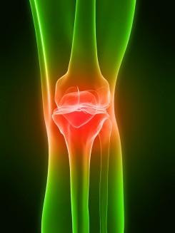 az artrózis gyorsított kezelése